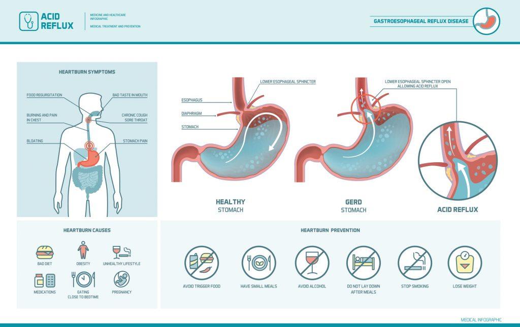 Oorzaak-maagzuur